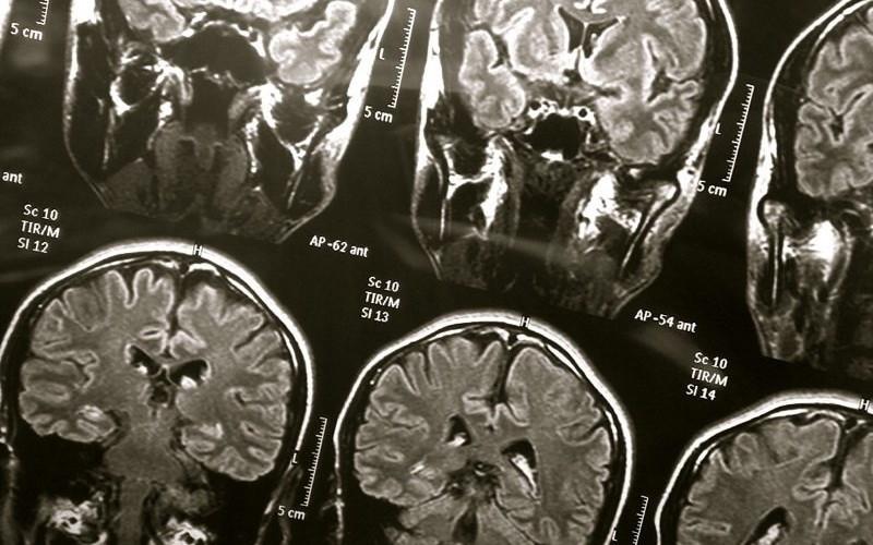 Neurologiacerebro