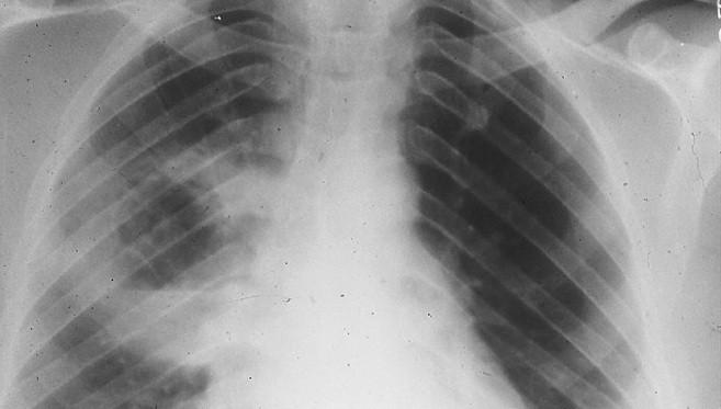 Radiografiapulmonar