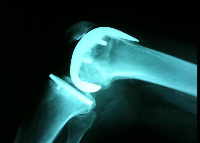 Rodillaradiografiarayos